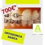 Ortodoncia básica