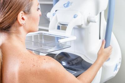 mamographie