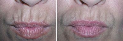 Lips And Perioral Lines Image 5