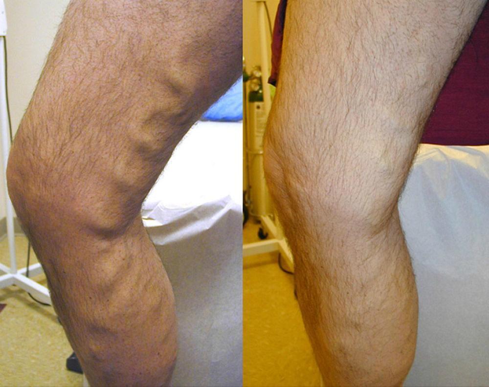 Leg Varicous Treatments Image 1