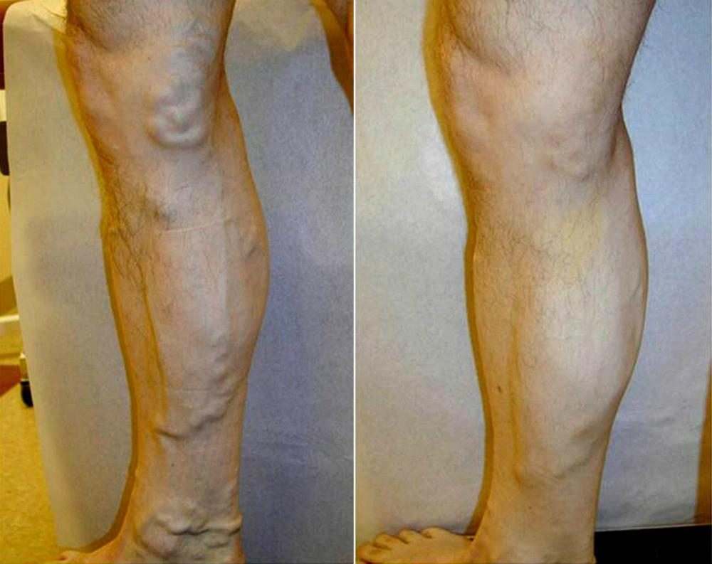 Leg Varicous Treatments Image 4