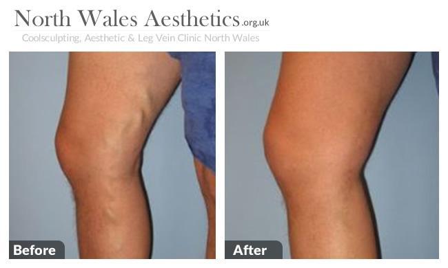 Leg Varicous Treatments Image 2