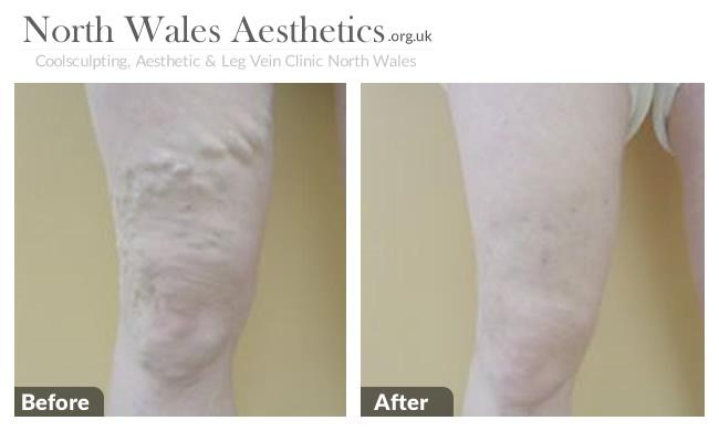 Leg Varicous Treatments Image 3