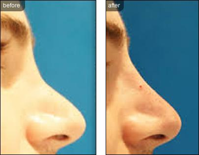 Nonsurgical Rhinoplasty Nose Treatments Image 3
