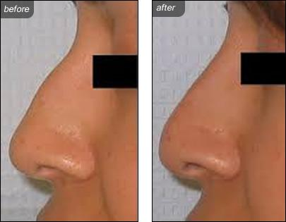 Nonsurgical Rhinoplasty Nose Treatments Image 1