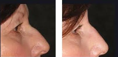 Nonsurgical Rhinoplasty Nose Treatments Image 2