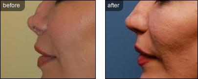 Nonsurgical Rhinoplasty Nose Treatments Image 4