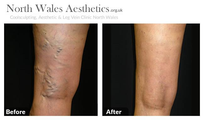 Sclerotherapy Treatments Image 1
