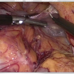 Transiliac Hernia after bone graft