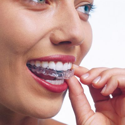 Teeth whitening: a brighter smile story