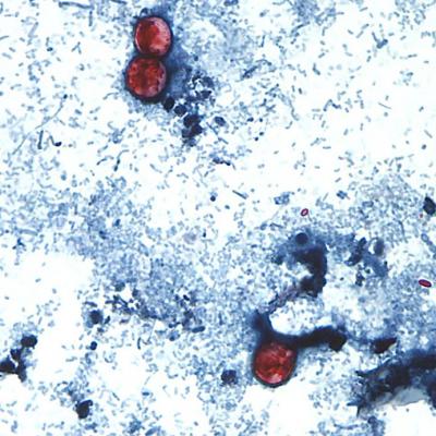 Cyclospora Outbreak