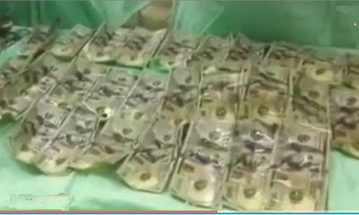 Money removed from woman's stomach