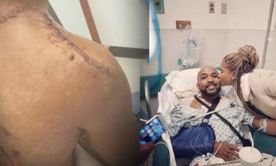 Banky W's tumour surgery