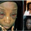 Taxify assault victim