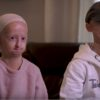 Siblings living with Progeria