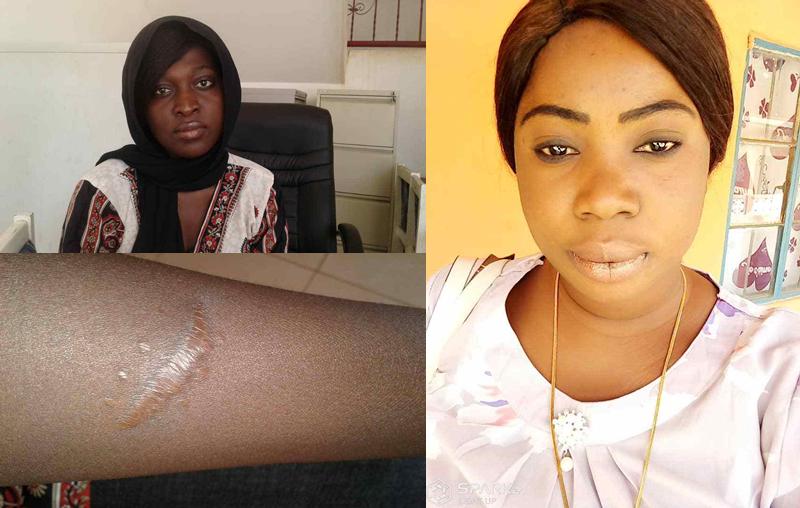 "Human Trafficking Survivor: ""When I Woke Up, I Realized My Kidney Was Gone"""
