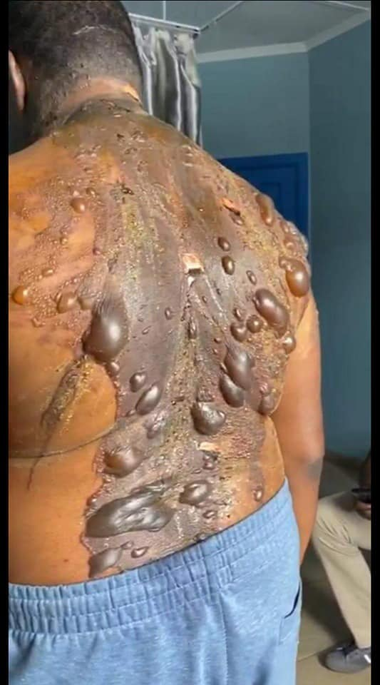 husband with hot oil