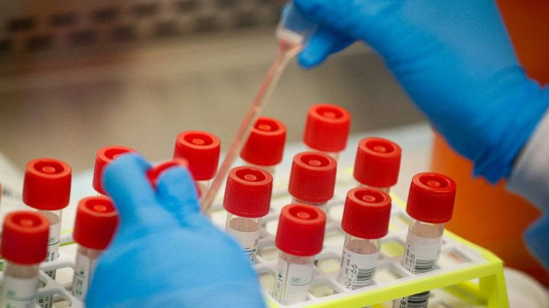 Experimental drug proves effective against Covid-19, new US study shows