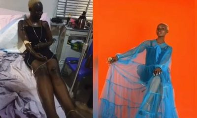 Nigerian Lady celebrates her birthday months after surviving gas explosion (photos)