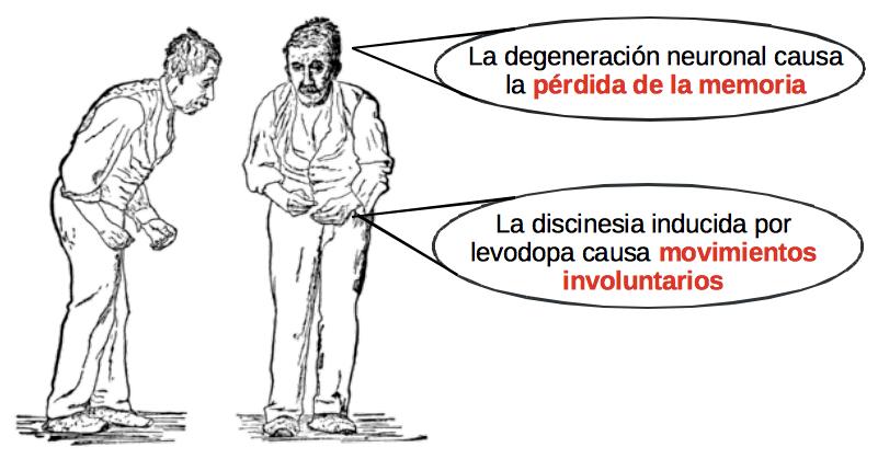 Pacientes de Parkinson tienen diferentes dificultades.